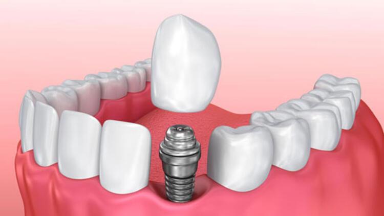 Eryaman Diş Hastanesi Hizmetleri